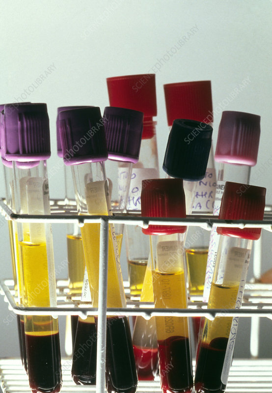 Centrifuged blood samples in test tubes