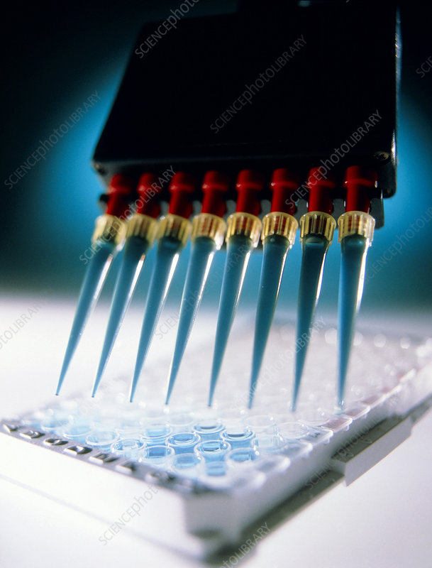 ELISA blood test for antibodies to disease