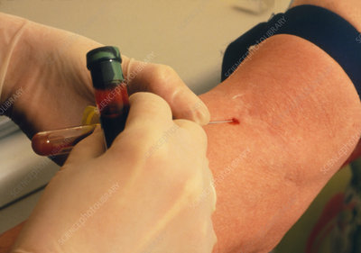 Drawing blood for a liver function test