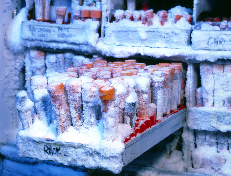 Blood samples cryogenic storage freezer