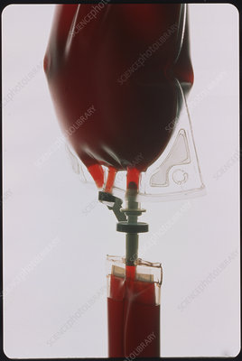 Bag of blood used for transfusion with an IV drip