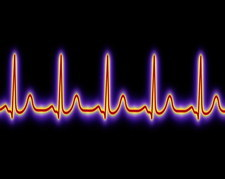 Computer illustration of a healthy heartbeat