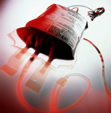 View of a bag containing a blood donation