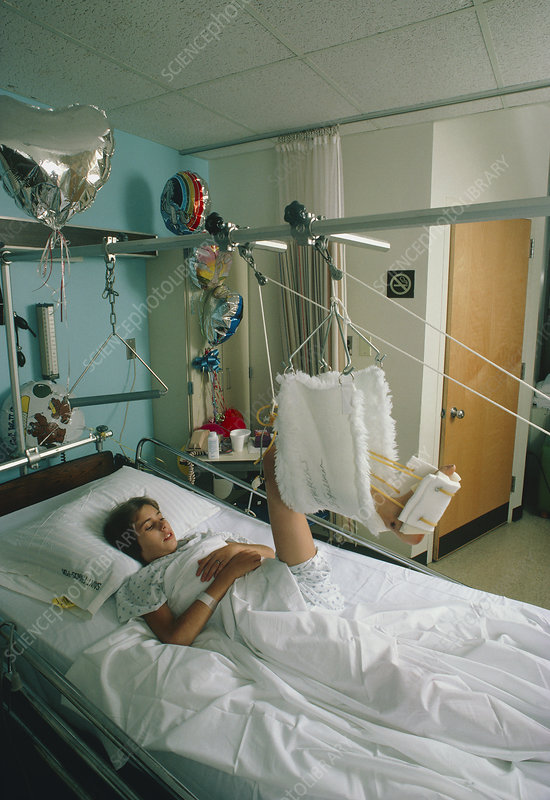 Young woman in hospital bed undergoing traction__