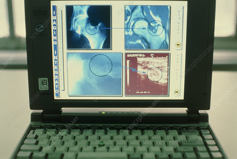 Laptop computer screen showing medical images