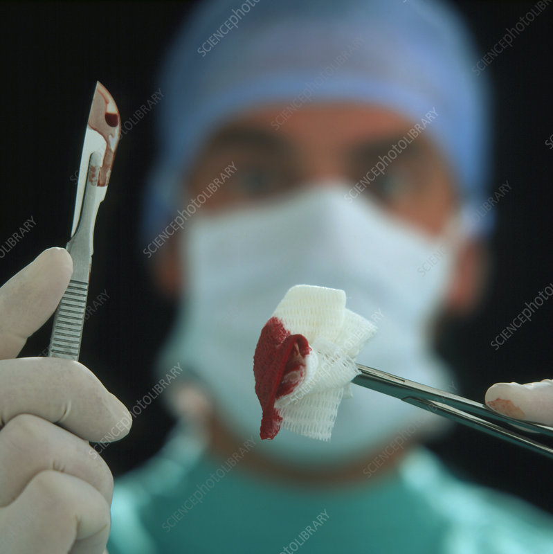 Blood-stained scalpel & gauze held by surgeon