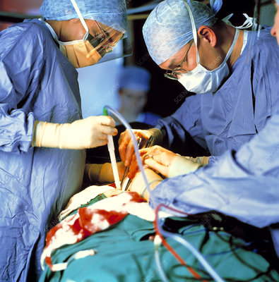 Prostate surgery