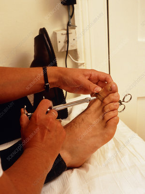 Surgery on ingrowing toenail