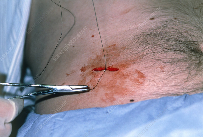 Doctor suturing an incision after a mole removal