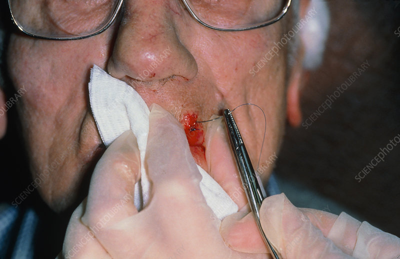 Stitching of elderly man's lacerated lip