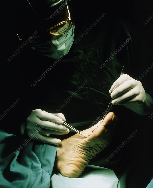 Orthopaedic surgeon examines foot before operation