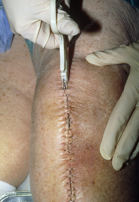 Steel suture removal