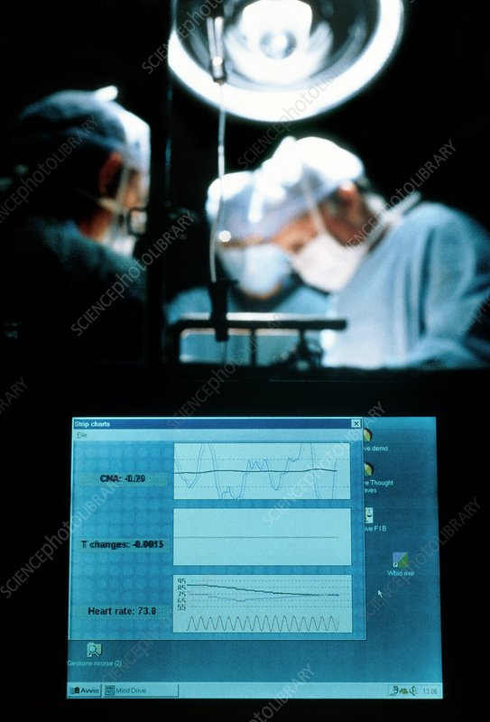Anaesthetised patient's mental state on a computer