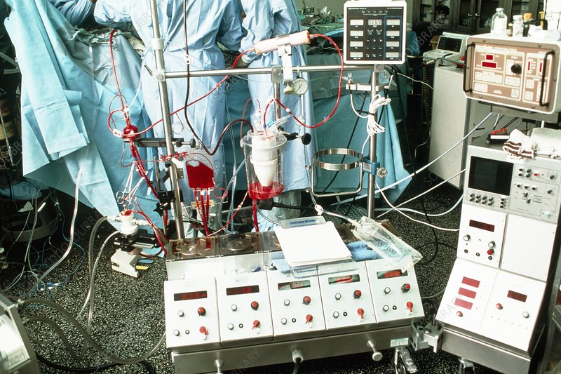 Paediatric heart transplant: heart/lung machine