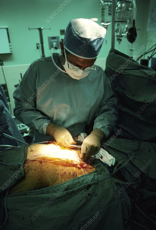 Surgeon stitching chest following heart surgery