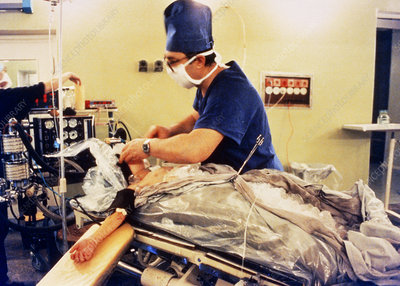 Hypothermic heart surgery: patient packed in ice