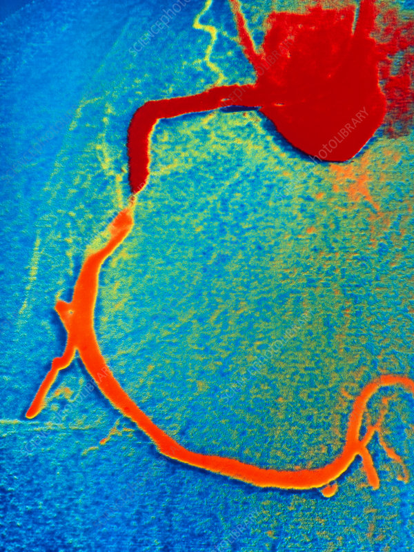 Angiogram of coronary artery before angioplasty