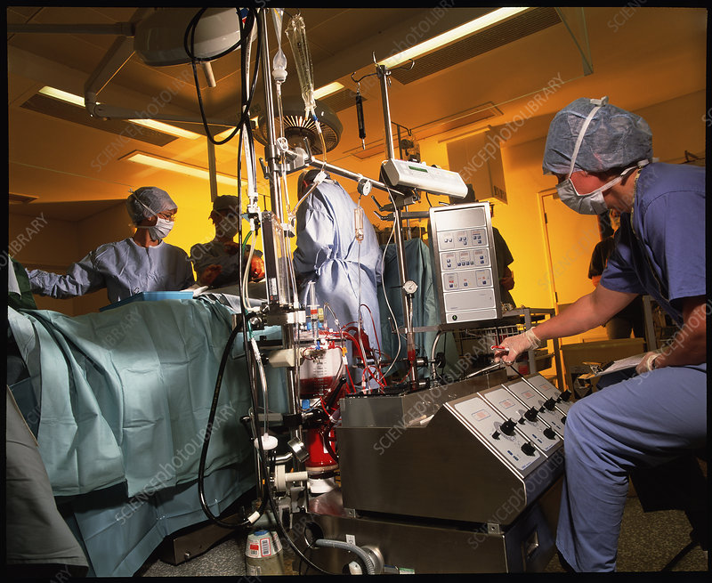 Heart bypass surgery with heart-lung machine