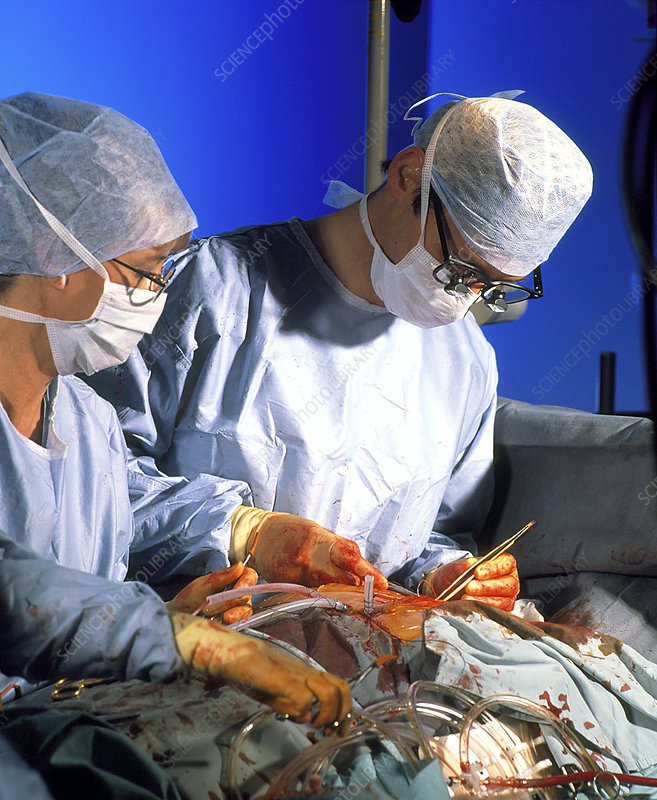 Surgeon completes triple bypass surgery on heart