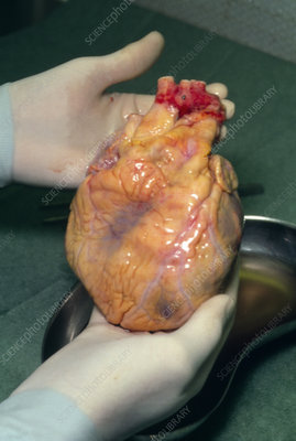 Hands holding freshly removed human heart