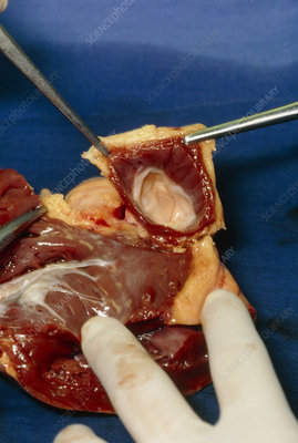 Dissection of aortic valve from donor human heart