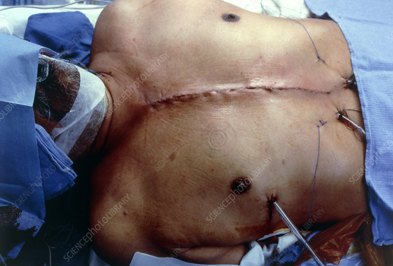Heart surgery sutures