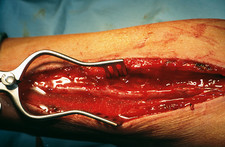 Dissecting arm artery for heart surgery