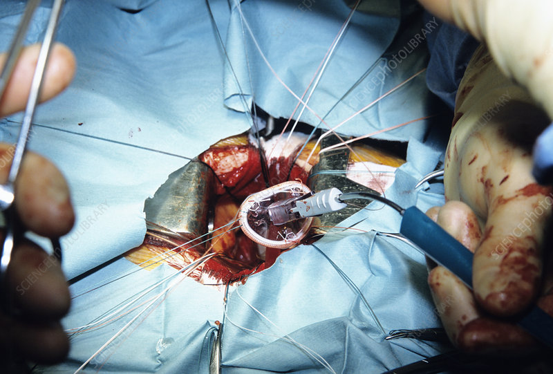 Artificial heart valve surgery