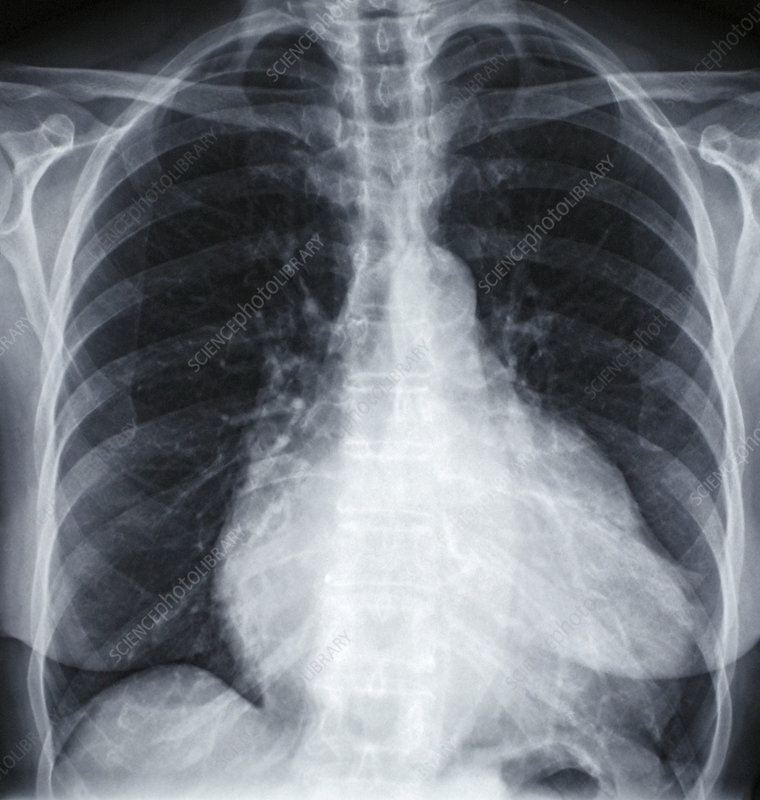 Heart prior to valve replacement, X-ray