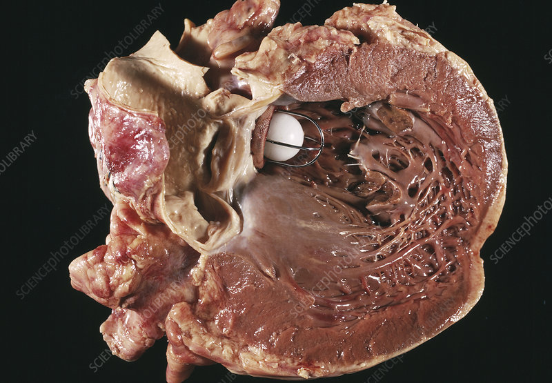 Artificial heart valve