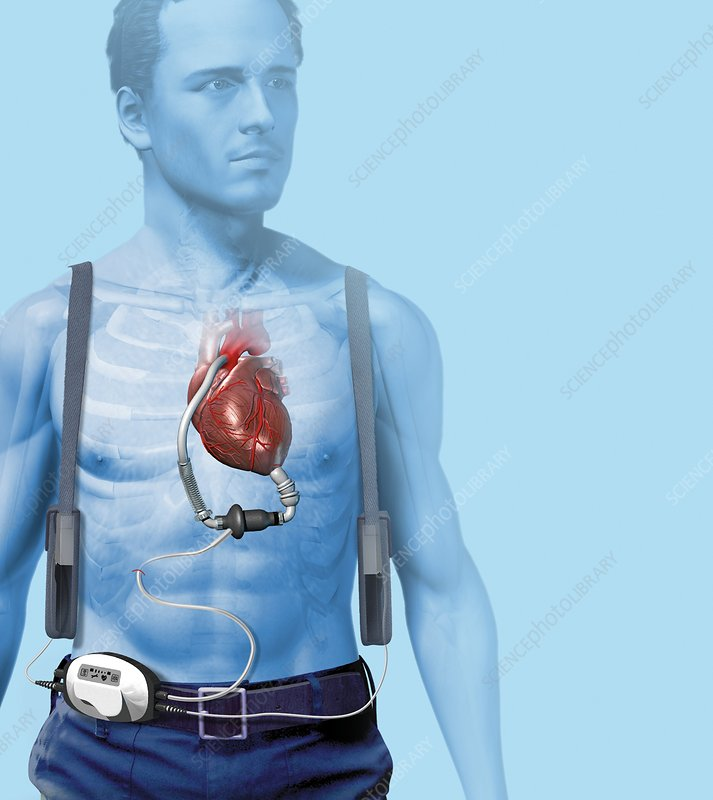 Mechanical heart pump, artwork