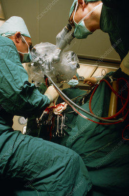 Split beam: operating microscope used in surgery
