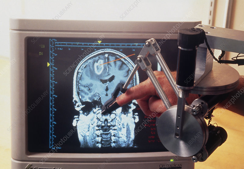 Phantom thimble & brain scan for training surgeons