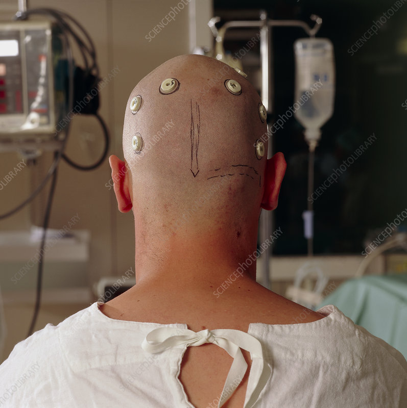 Neurosurgery patient with head map markers