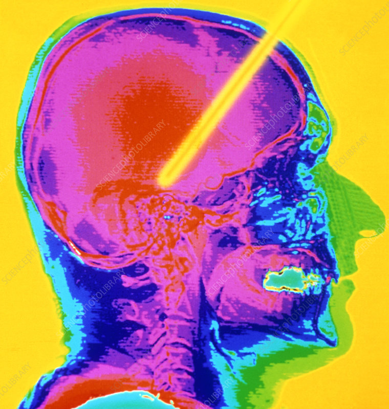 Coloured CT scan: Parkinson's disease brain probe
