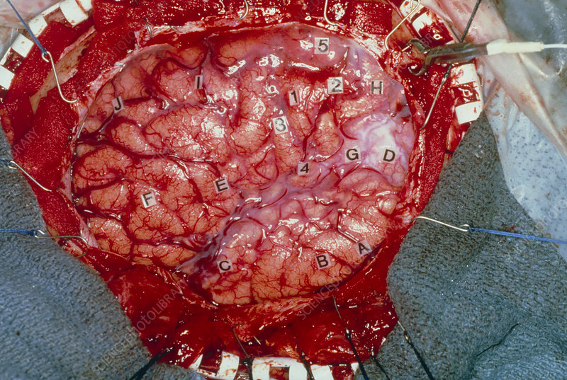 View of the human brain exposed in surgery