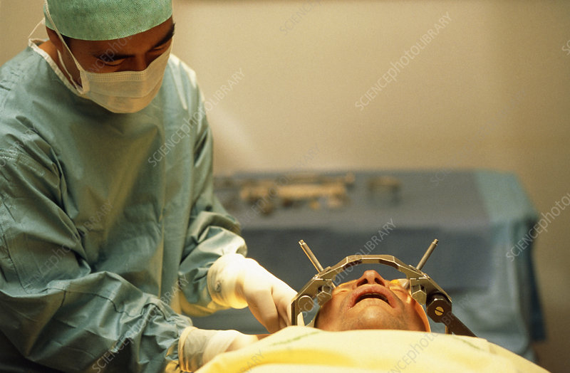 Surgeon during stereotaxic brain surgery