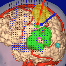3-D MRI scan of brain tumour for virtual surgery