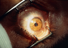 Close-up of eye undergoing excimer laser surgery
