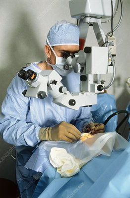 Surgeon doing cataract surgery using microscope