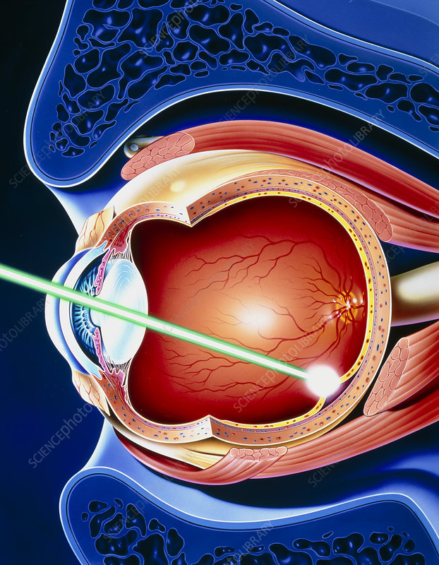 Artwork of laser surgery on detached retina