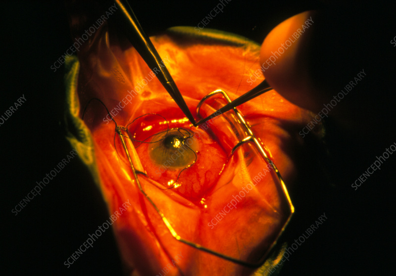Suturing eye of patient after trabeculectomy