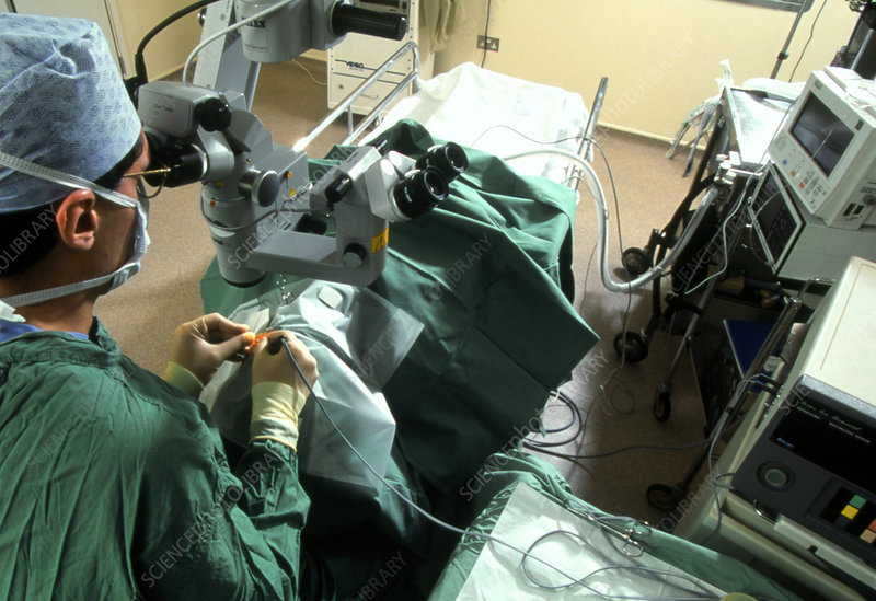 Surgeon removes cataracts using ultrasound