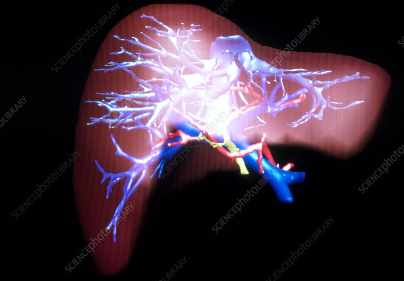3-D image of human liver for virtual liver surgery
