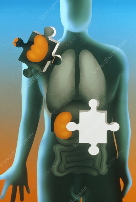Artwork showing donated kidney as a jigsaw piece