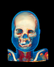 Facial reconstruction, CT scan