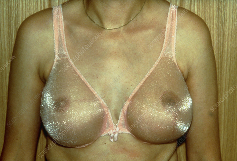Appearance of woman's chest after reconstruction