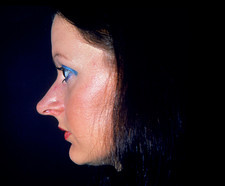 Profile of woman's face prior to cosmetic surgery