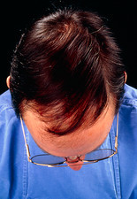 Head of male after baldness reduction surgery