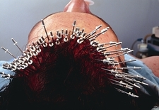 Head of a man during hair transplant surgery